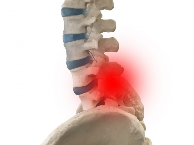 整骨院でよく聞く質問です。「脊柱管狭窄症と診断されましたがどこで治療を受ければ良いの?」江東区(東砂、大島、南砂)の整骨院